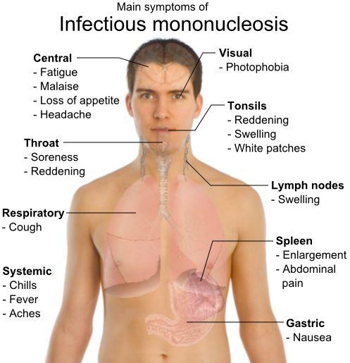 mononukleoza bolest poljupca