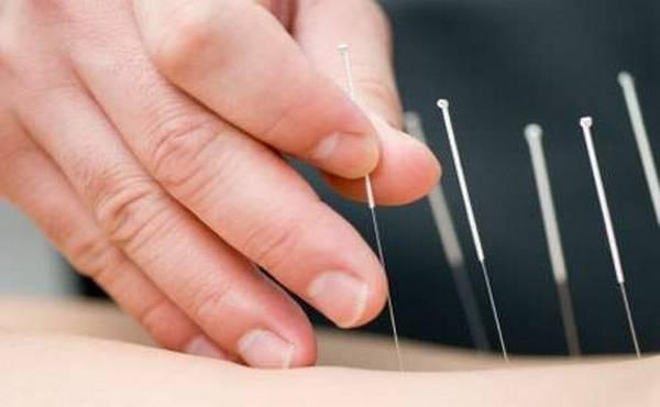 mrsavljenje i akupunktura