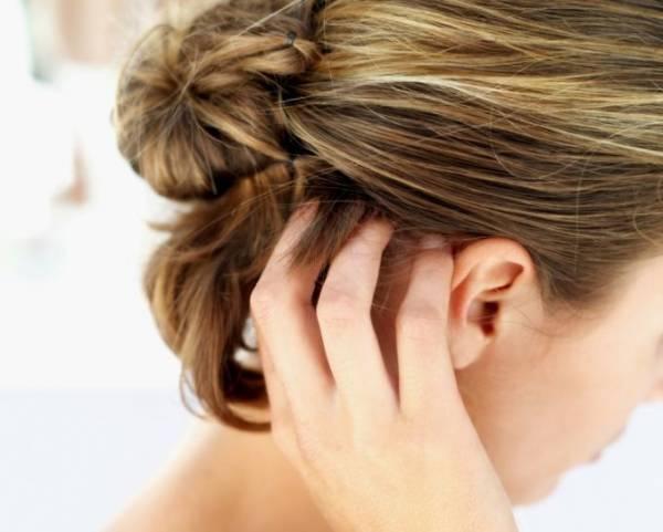 svrab i opadanje kose