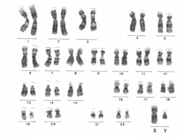 hromozomi