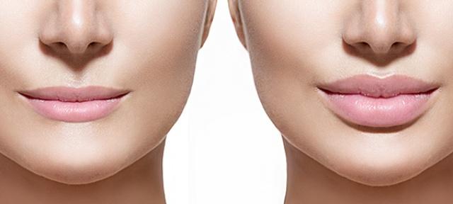 Povećanje usana hijaluronom - pre i posle intervencije