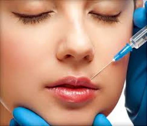 hijaluron, uvećanje usana