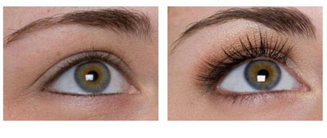 Pre i posle tretmana